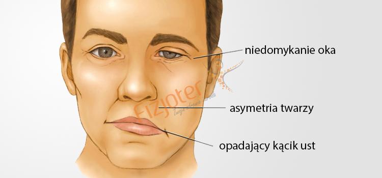 Porażenie nerwu twarzowego Kraków