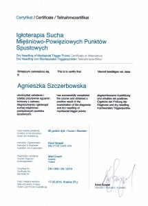 Agnieszka Szczerbowska - Suche igłowanie